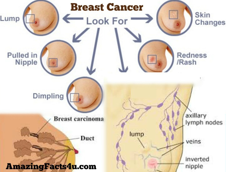 Breast Cancer Amazing Facts
